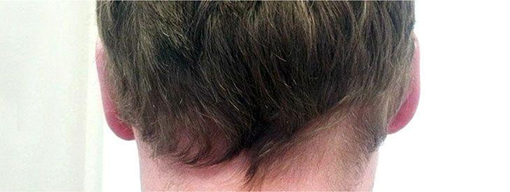 Efekty zabiegu korekty uszu