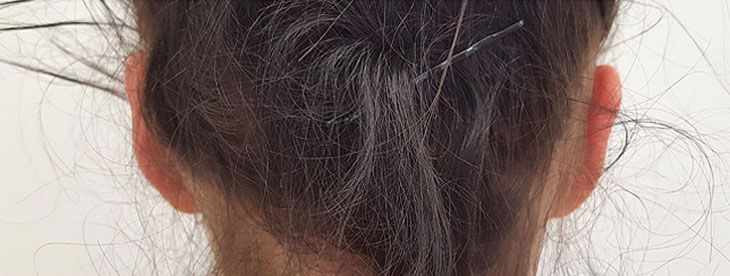 efekty korekcja uszu