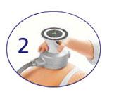 New Ultrashape VDF - krok 2