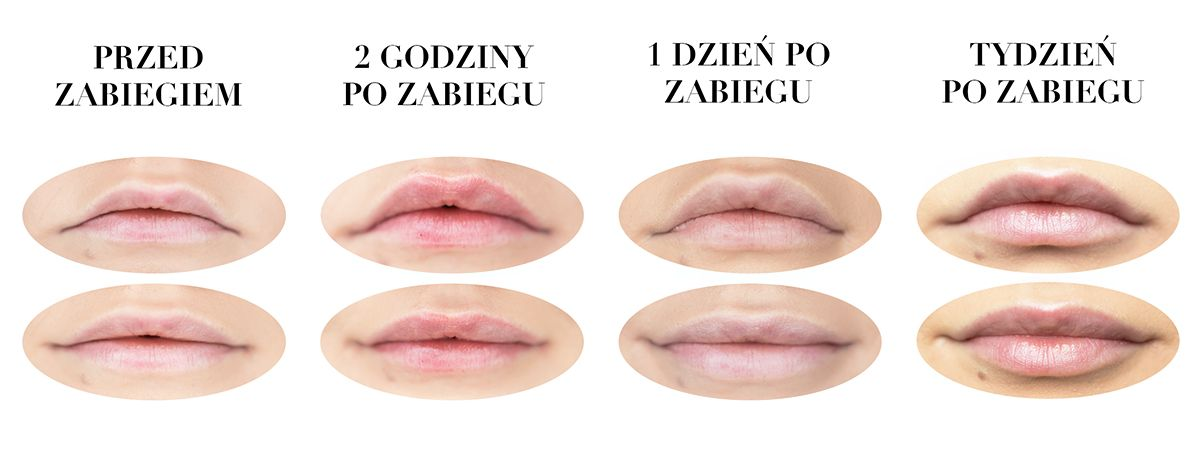 większe ust w Warszawie