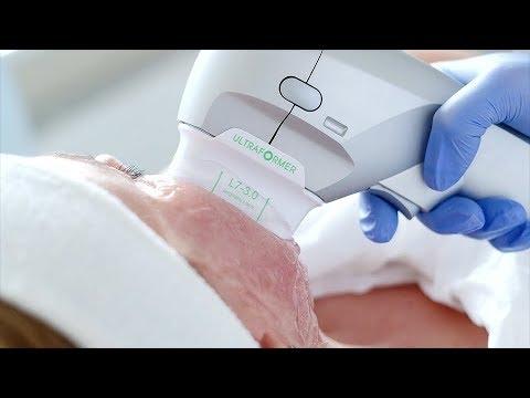 Ultraformer III – nieinwazyjny lifting na ciało i twarz